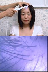 彼女の毛・毛抜きと頭皮