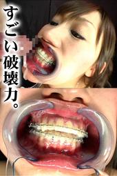 歯列矯正フェラ