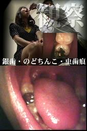 【口内観察】美女4名診察■口内事情【銀歯・のどちんこ・虫歯痕】