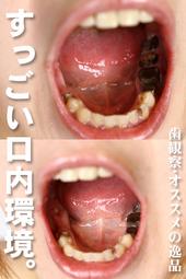 歯観察 写真付「カレンちゃん編」オススメの逸品!!