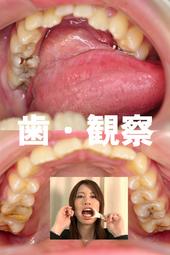 歯観察 写真付「美玲編」