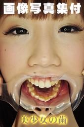 歯観察 写真付「ゆうこチャン編」