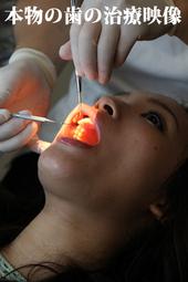 衝撃!歯の治療映像 吉高まりあちゃん「治療写真付」