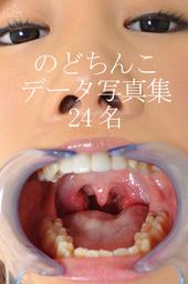 美女の「のどちんこ」データ写真集2 24名分!
