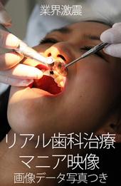 本物の歯科治療映像 えみ編