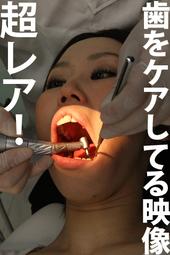 歯科治療映像 ねねサン編