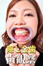 美女の歯観察 えりなサン編 データ写真31枚!