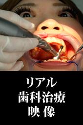 歯!レア歯科治療映像「まみ」チャン編