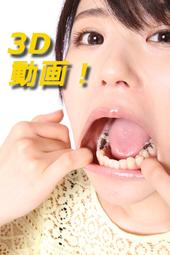 3D 武藤つぐみちゃんの歯観察