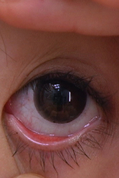 眼球観察1-01
