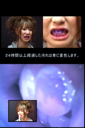 美女の歯 観察映像