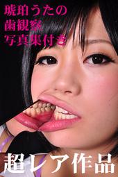 歯観察 写真付 「琥珀うた編」