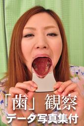 歯観察 写真付「みおチャン編」