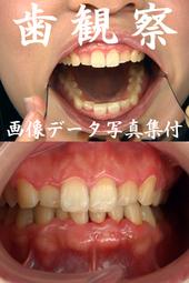 歯観察 写真付「まやチャン編」