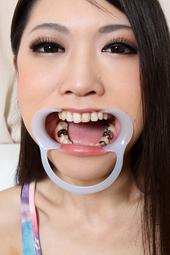 相田瞳 珍しい配列銀歯