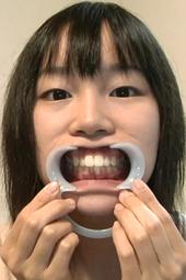 素朴な感じの娘の歯石除去!フルハイビジョン