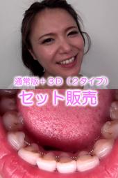 はるかちゃんの口内・矯正歯観察(通常版+3D)